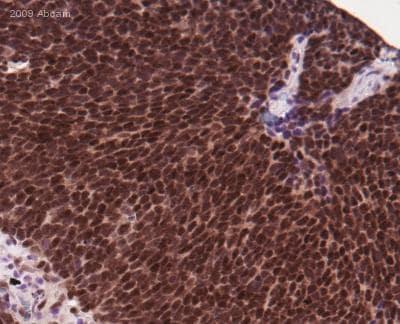 Immunohistochemistry (Formalin/PFA-fixed paraffin-embedded sections) - Anti-DNA Polymerase beta antibody (ab26343)