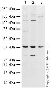 Western blot - Anti-DNA Polymerase beta antibody (ab26343)