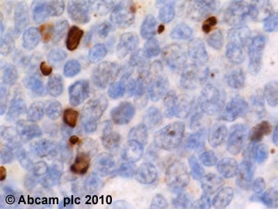 Immunohistochemistry (Formalin/PFA-fixed paraffin-embedded sections) - Anti-gamma H2A.X (phospho S139) antibody [9F3] (ab26350)