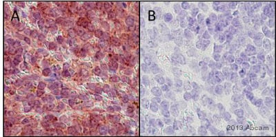 Immunohistochemistry (Formalin/PFA-fixed paraffin-embedded sections) - Anti-SOX9 antibody (ab26414)