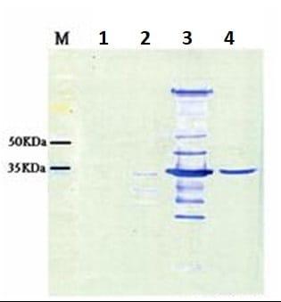 Western blot - Anti-Nervous Necrosis Virus antibody (ab26812)