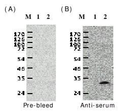 Western blot - Anti-White spot syndrome virus VP28 antibody (ab26935)