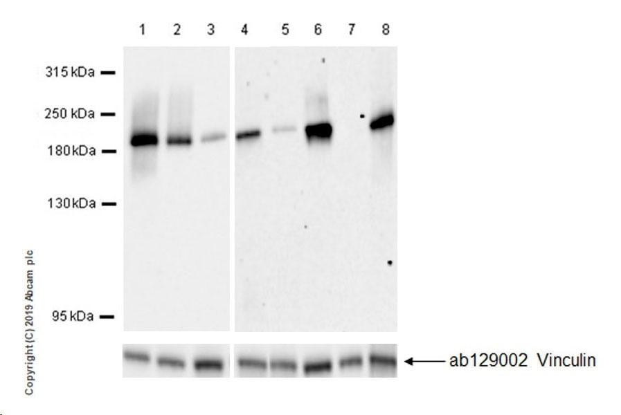 Western blot - Anti-MRP1 antibody [EPR22841-78] (ab260038)