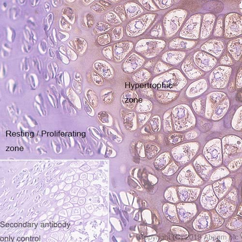 Immunohistochemistry (Formalin/PFA-fixed paraffin-embedded sections) - Anti-Collagen X antibody [EPR22920-211] (ab260040)