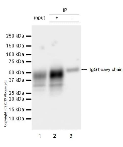 Immunoprecipitation - Anti-TFPI antibody [EPR22977-133] (ab260042)