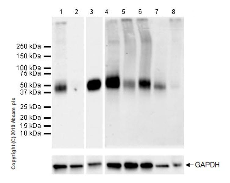 Western blot - Anti-TFPI antibody [EPR22977-133] (ab260042)