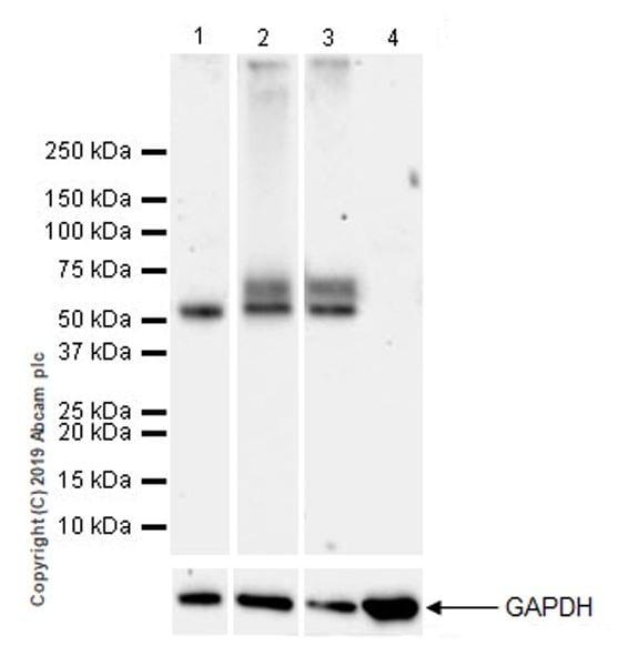 Western blot - Anti-IL-13 receptor alpha 2 antibody [EPR22978-163] (ab260044)
