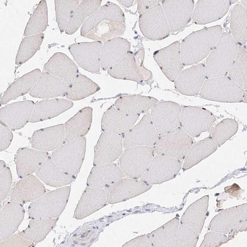 Immunohistochemistry (Formalin/PFA-fixed paraffin-embedded sections) - Anti-Glutaminase antibody (ab260047)