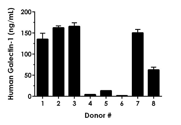 Serum from eight individual healthy human donors was measured in duplicate.