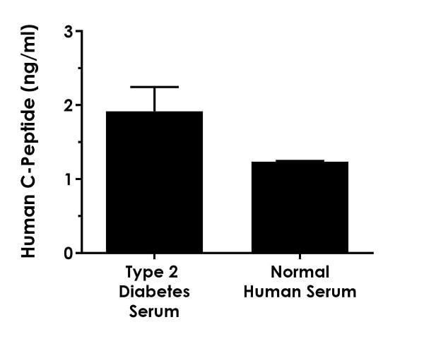 Serum from three individual human male donors with type 2 diabetes was measured in duplicate.