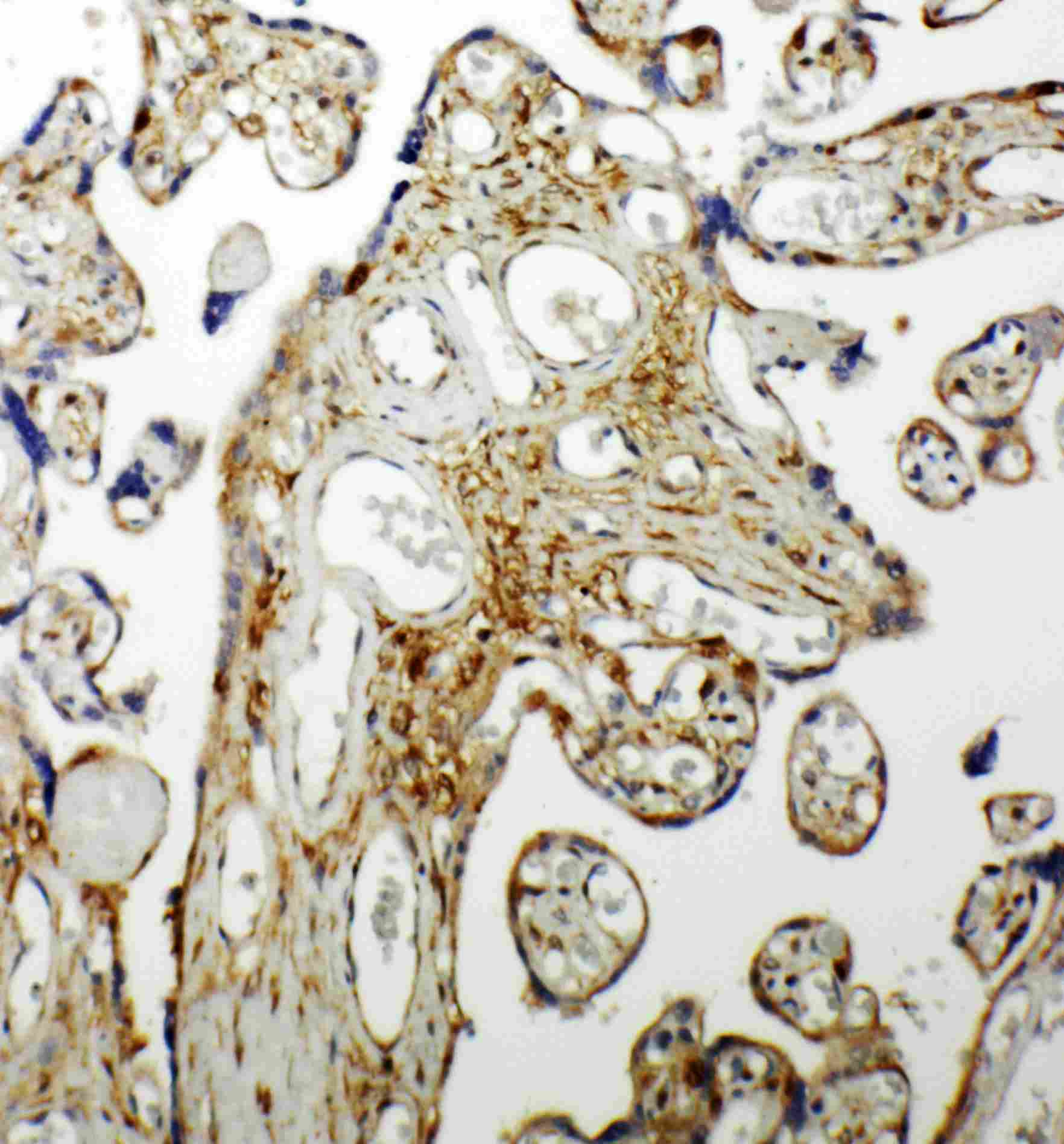 Immunohistochemistry (Formalin/PFA-fixed paraffin-embedded sections) - Anti-SPHK1 antibody (ab260073)