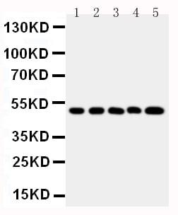 Western blot - Anti-SPHK1 antibody (ab260073)