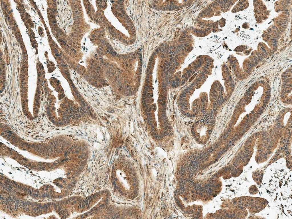 Immunohistochemistry (Formalin/PFA-fixed paraffin-embedded sections) - Anti-MDM2 antibody (ab260074)