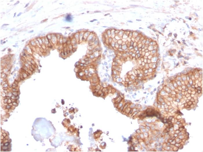 Immunohistochemistry (Formalin/PFA-fixed paraffin-embedded sections) - Anti-CD47 antibody [CD47/2937] (ab260418)