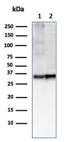 Western blot - Anti-CD47 antibody [CD47/2937] (ab260418)