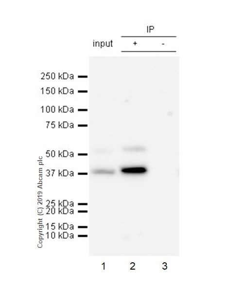 Immunoprecipitation - Anti-Cdk9 antibody [EPR22956-60] (ab261724)
