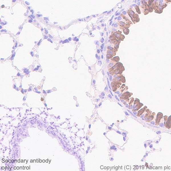 Immunohistochemistry (Formalin/PFA-fixed paraffin-embedded sections) - Anti-Haptoglobin antibody [EPR22856-233] - BSA and Azide free (ab261725)
