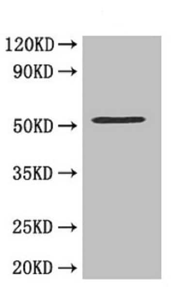 Western blot - Anti-MMP10 antibody (ab261733)