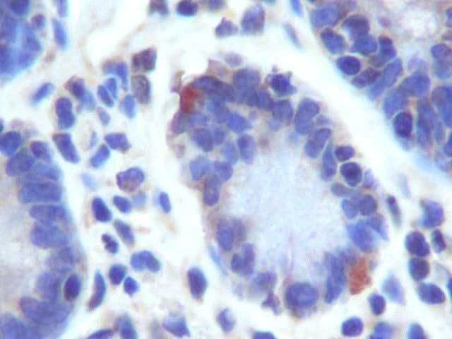 Immunohistochemistry (Formalin/PFA-fixed paraffin-embedded sections) - Anti-LGR5 antibody (ab261734)