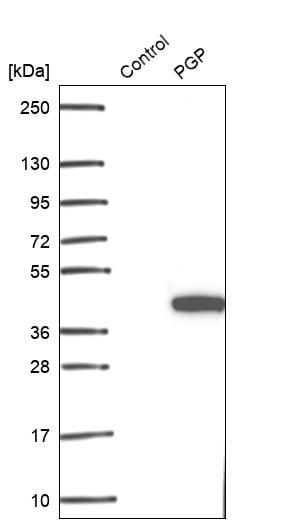 Western blot - Anti-PGP antibody (ab261736)