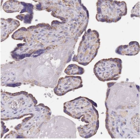 Immunohistochemistry (Formalin/PFA-fixed paraffin-embedded sections) - Anti-PGP antibody (ab261736)