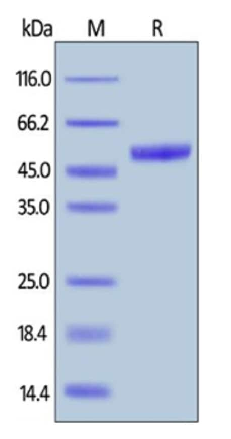 SDS-PAGE - Recombinant Mouse PVRIG/CD112R protein (Fc Chimera) (ab261841)