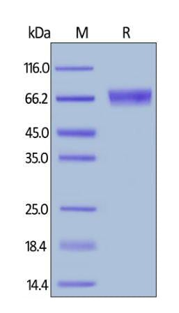 SDS-PAGE - Recombinant human IL-15RA protein (Fc Chimera Active) (ab261848)