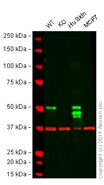 Western blot - Human KRT14 (Cytokeratin 14) knockout A-431 cell line (ab261897)