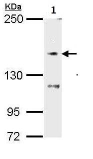 Western blot - Anti-TRPM7 antibody (ab262698)