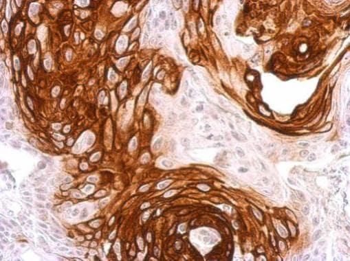 Immunohistochemistry (Formalin/PFA-fixed paraffin-embedded sections) - Anti-Activin Receptor Type IA antibody (ab262702)