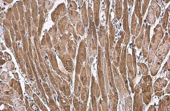 Immunohistochemistry (Formalin/PFA-fixed paraffin-embedded sections) - Anti-Natriuretic peptides A antibody (ab262703)
