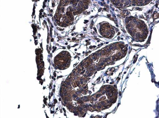 Immunohistochemistry (Formalin/PFA-fixed paraffin-embedded sections) - Anti-Glutaminase C antibody (ab262716)