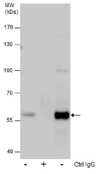 Immunoprecipitation - Anti-Glutaminase C antibody (ab262716)