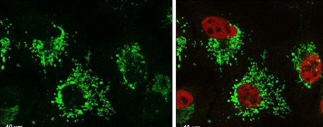 Immunocytochemistry/ Immunofluorescence - Anti-Glutaminase C antibody (ab262716)