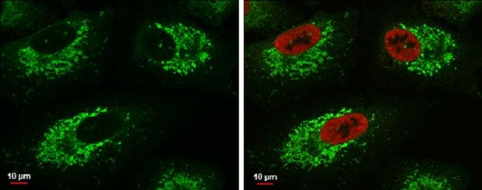 Immunocytochemistry/ Immunofluorescence - Anti-Glutaminase C antibody (ab262717)