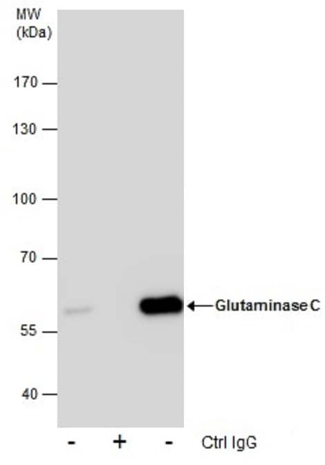 Immunoprecipitation - Anti-Glutaminase C antibody (ab262717)