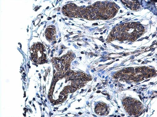 Immunohistochemistry (Formalin/PFA-fixed paraffin-embedded sections) - Anti-Glutaminase C antibody (ab262717)