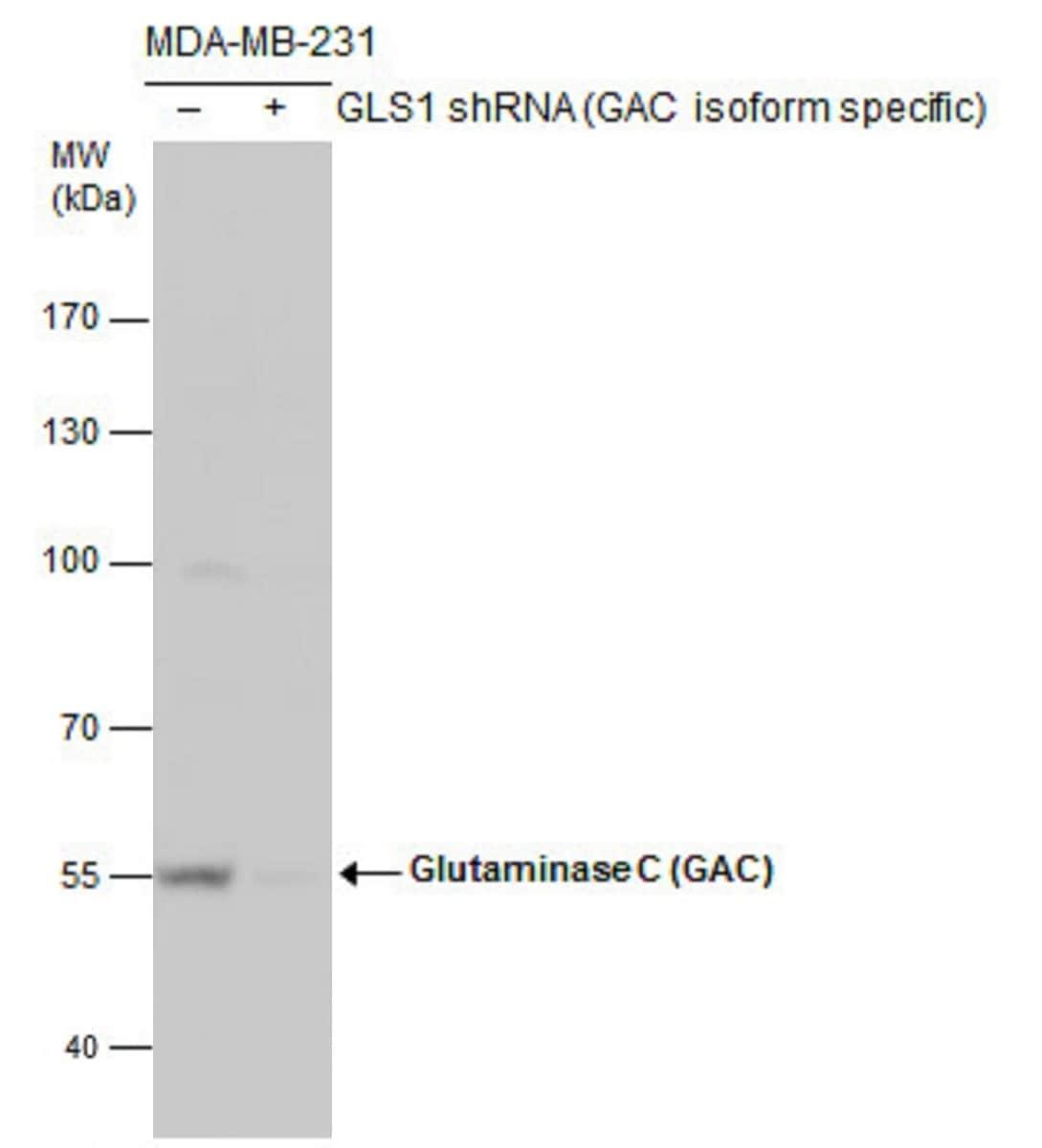 Western blot - Anti-Glutaminase C antibody (ab262717)