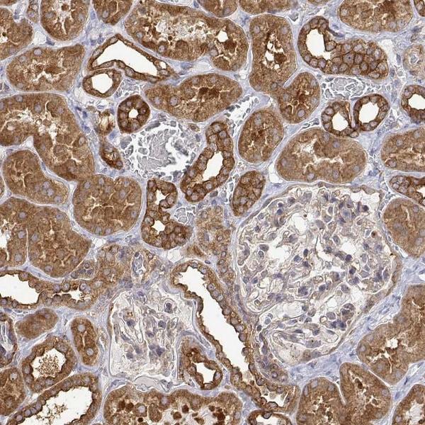 Immunohistochemistry (Formalin/PFA-fixed paraffin-embedded sections) - Anti-PACSIN2 antibody (ab262841)