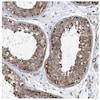 Immunohistochemistry (Formalin/PFA-fixed paraffin-embedded sections) - Anti-dGK antibody (ab262847)