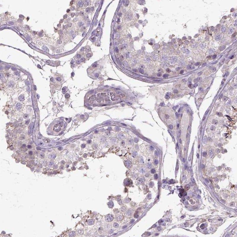 Immunohistochemistry (Formalin/PFA-fixed paraffin-embedded sections) - Anti-htrA1 antibody (ab262852)