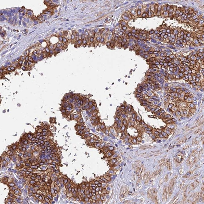 Immunohistochemistry (Formalin/PFA-fixed paraffin-embedded sections) - Anti-Stanniocalcin 2/STC-2 antibody (ab262857)