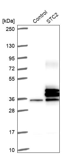 Western blot - Anti-Stanniocalcin 2/STC-2 antibody (ab262857)
