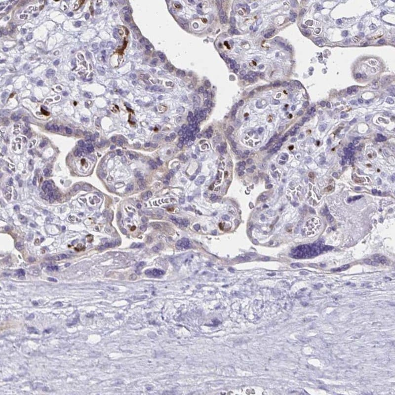 Immunohistochemistry (Formalin/PFA-fixed paraffin-embedded sections) - Anti-Lin28B antibody (ab262858)