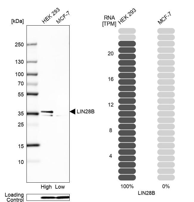 Western blot - Anti-Lin28B antibody (ab262859)