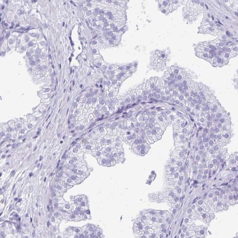 Immunohistochemistry (Formalin/PFA-fixed paraffin-embedded sections) - Anti-Lin28B antibody (ab262859)
