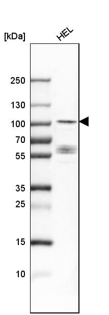 Western blot - Anti-DYRK1A antibody (ab262860)