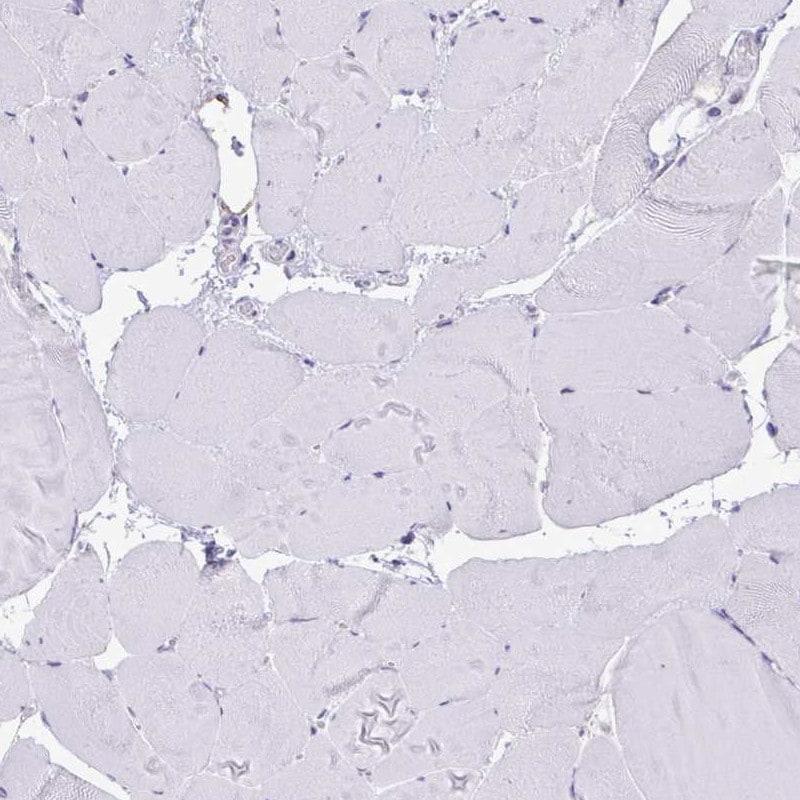 Immunohistochemistry (Formalin/PFA-fixed paraffin-embedded sections) - Anti-Natriuretic peptides A antibody (ab262863)