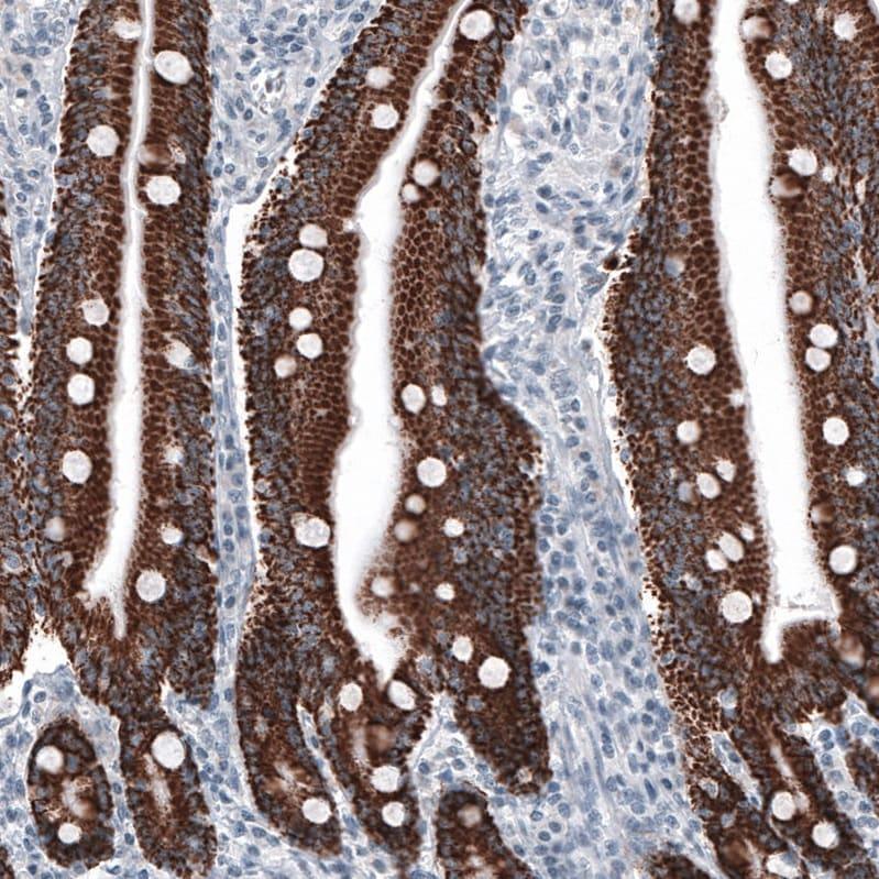 Immunohistochemistry (Formalin/PFA-fixed paraffin-embedded sections) - Anti-Ornithine Carbamoyltransferase/OTC antibody [CL4045] (ab262864)