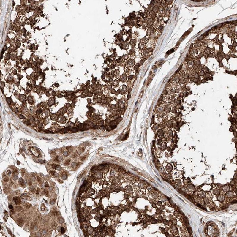 Immunohistochemistry (Formalin/PFA-fixed paraffin-embedded sections) - Anti-PISD antibody (ab262867)